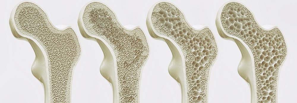 Bone healthy Tips that keep your bones strong