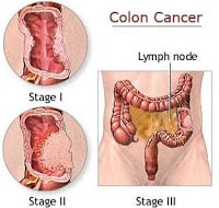 Colon Cancer Treatment Cost In India Top Cancer Hospital In India