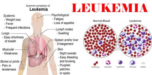 Leukemia Cancer Treatment Cost In India Best Hospital For Leukemia Treatment In India