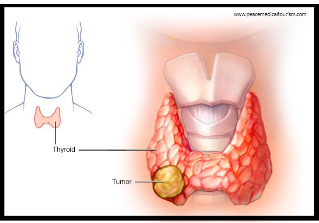 Thyroid Cancer Treatment Cost In India Top Thyroid Cancer Surgeon In India